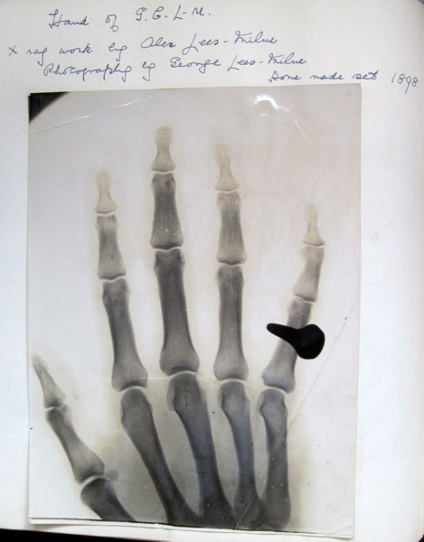 George Lees-Milne's left hand, by his brother Alec. Röntgen discovered X rays in in 1895 so this 1898 picture is a very early example.